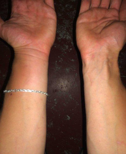 Takhle moje ruka naposledy vypadala ve 4. třídě, kdy jsem byl tlusté dítě.